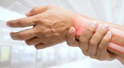 Fractura ósea: Diagnóstico y tratamiento