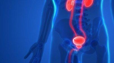 Los alimentos picantes, ¿pueden afectar a la próstata?