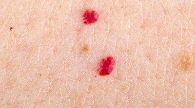 Qué son los puntos rojos que salen en la piel