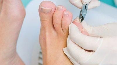 Cómo evitar las uñas encarnadas en los pies