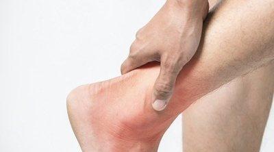 5 formas de tratar el síndrome de Haglund