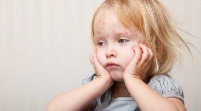 Enfermedades que causan ampollas en niños