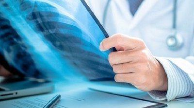 Factores de riesgo de padecer cáncer de pulmón en personas no fumadoras