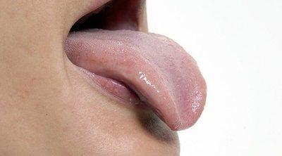 En qué consiste la glositis