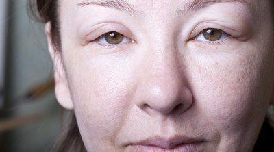 Cómo evitar que se caiga la piel de la cara al perder peso