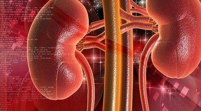 Relación de las proteínas y las cetonas con los cálculos renales