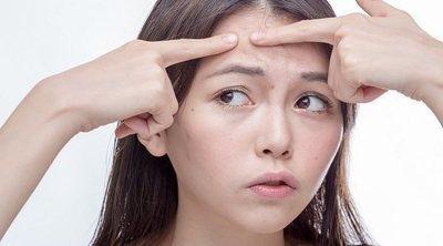 Cómo eliminar el acné de la frente