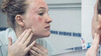 Hongo facial: síntomas