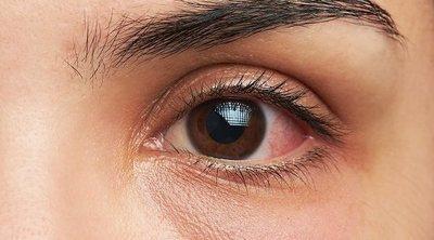 Por qué salen manchas rojas en los ojos