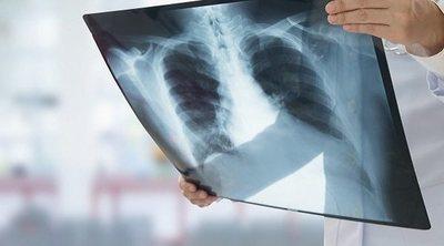 Tipos de infecciones pulmonares
