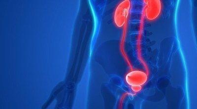 Síntomas de propagación del cáncer de próstata