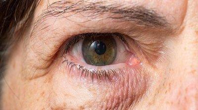 Carnosidad en los ojos: causas y tratamiento