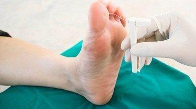 Cuál es el ciclo de vida de la tiña pedis o pie de atleta